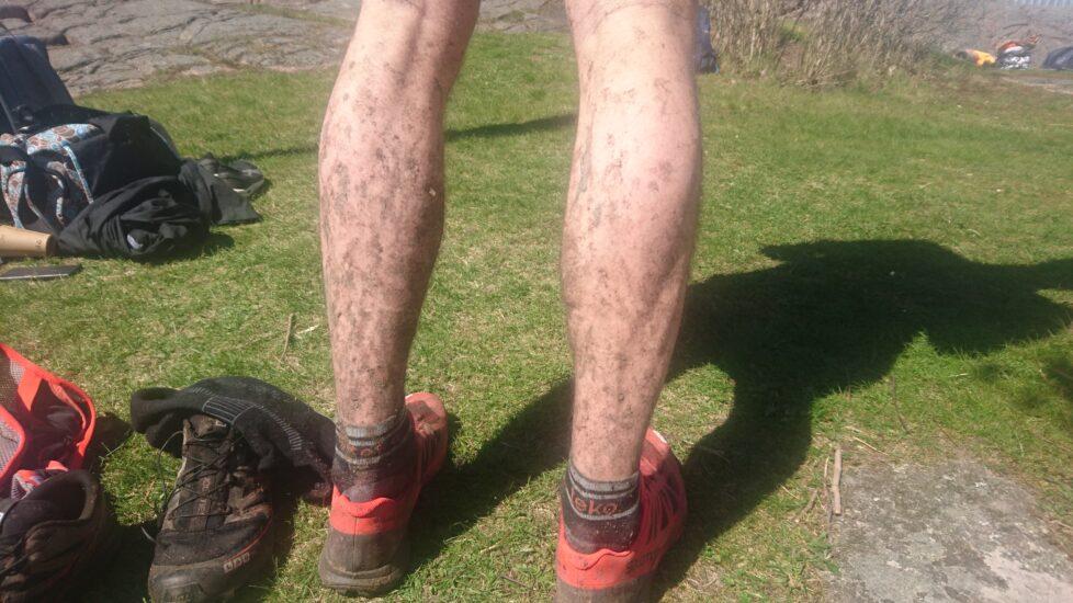 Min första löparskada – Del 1 Skadan